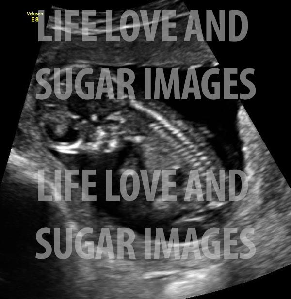 ultrasound image of baby B